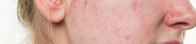 Les píndoles anticonceptives milloren l'acne?