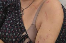 Presumpta agressió per llaços grocs a Torrefarrera
