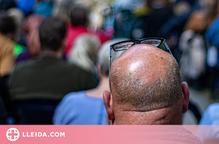 Quines són les causes de l'alopècia?