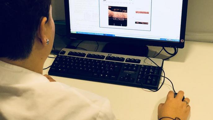 L'IRB crea un programa per prevenir problemes vasculars