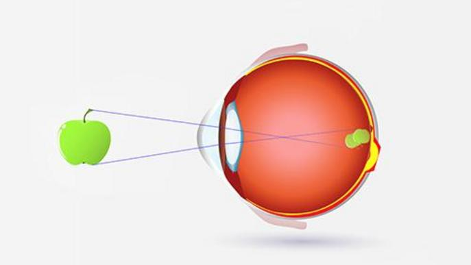 Quins símptomes presenta l'astigmatisme?