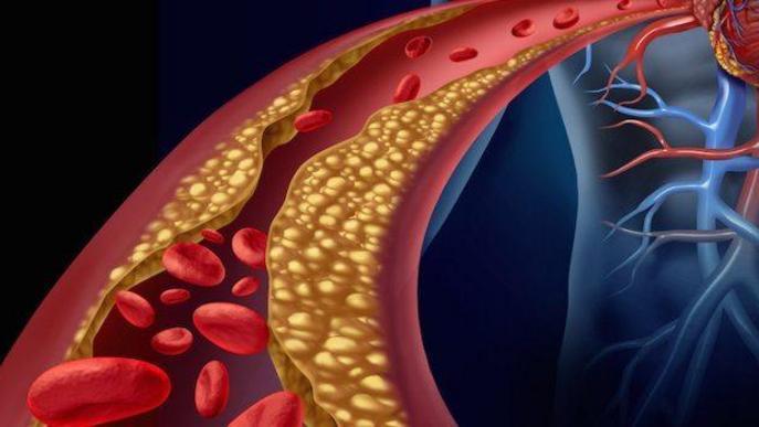 Com pot afectar-me el colesterol a curt i llarg termini?