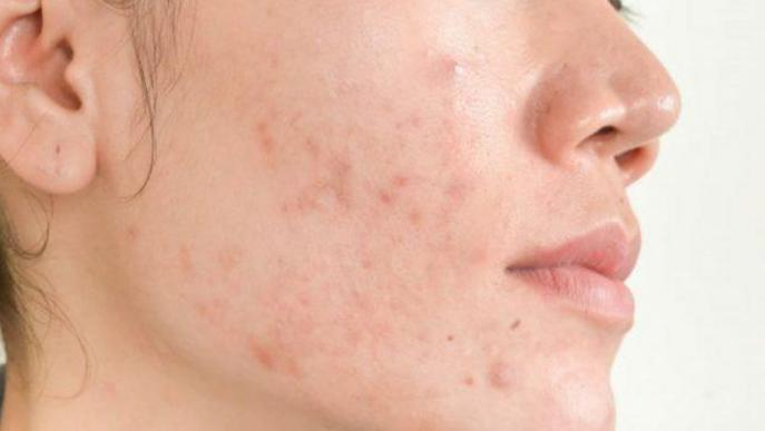 Com podem deslliurar-nos de l'acne?