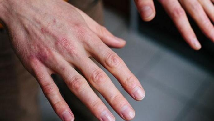 L'afectació cutània que pot produir la Covid-19