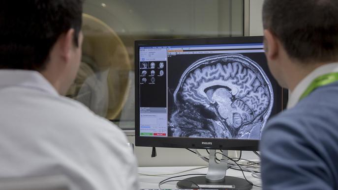 Troben com detectar la fase asimptomàtica de l'Alzheimer