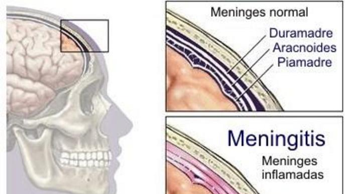 Pateixo pel meu fill davant el cas mortal de meningitis. Alguna recomanació?