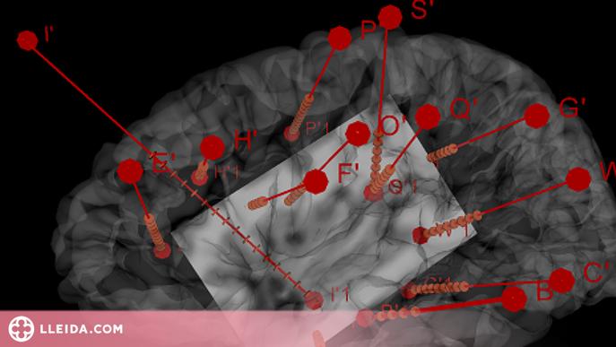 L'estimulació d'una part del cervell fa variar l'activitat del cor