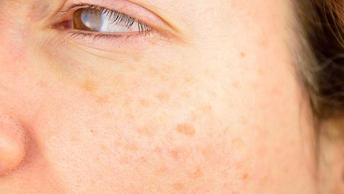 Consells per les taques a la pell després de l'estiu