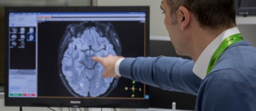 La pèrdua de pes podria ser un indicador de major risc de desenvolupar Alzheimer