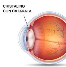 Com es manifesten les cataractes?