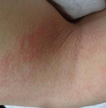És hereditària la dermatitis atòpica?