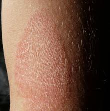 Què s'ha d'evitar en casos de pell atòpica?