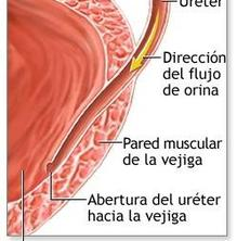Com puc prevenir la infecció d'orina?