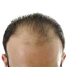Fins a quin punt ens hem de preocupar per la caiguda de cabell?