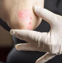 De quins nous tractaments disposem per a combatre la psoriasis?